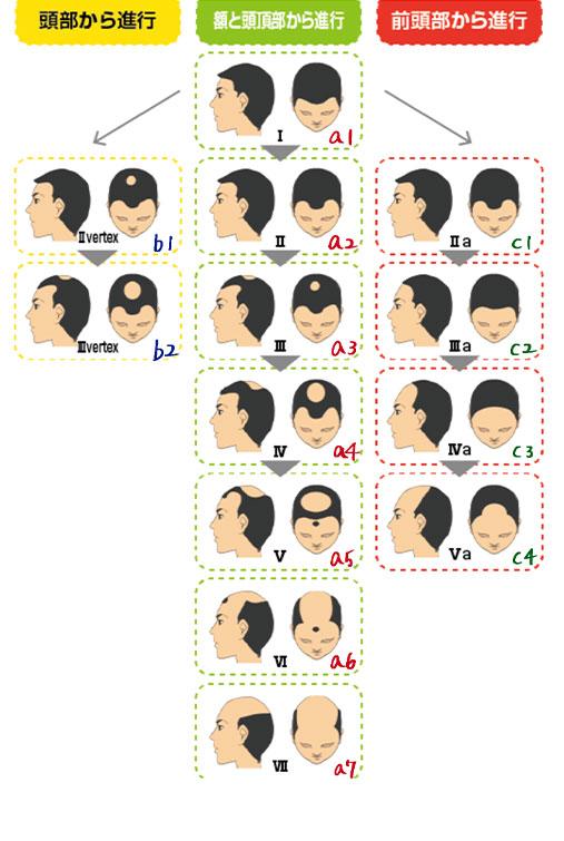 性の薄毛のパターン画像
